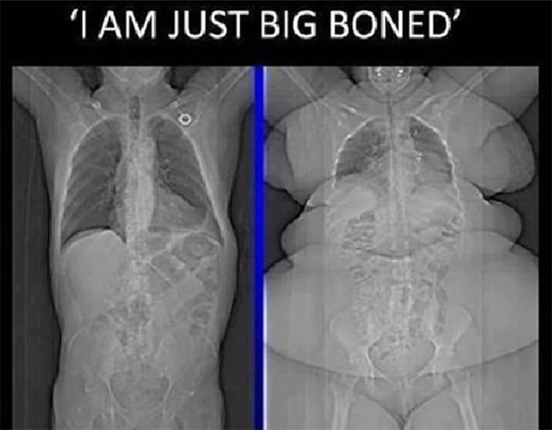 største knogle i kroppen